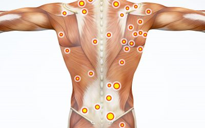 Everything You Need to Know About Trigger Point Therapy Massage